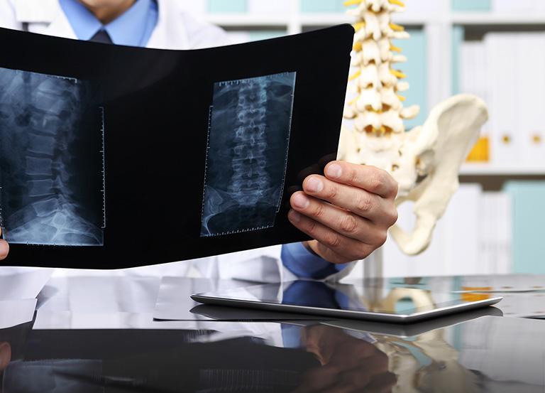 Lekarz ogląda zdjęcie RTG