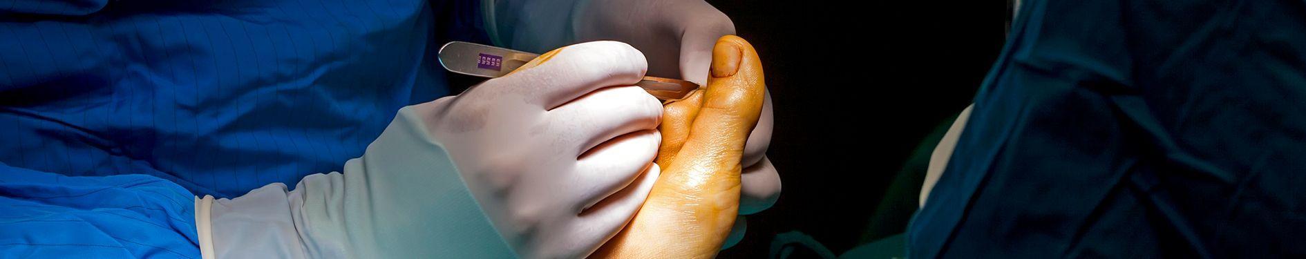 Operowanie stopy